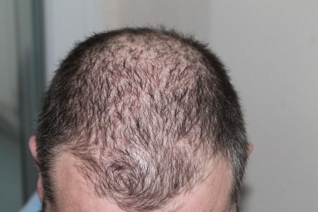 Take Action Today Against Embarrassing Hair Loss